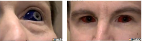 O branco dos olhos tatuados