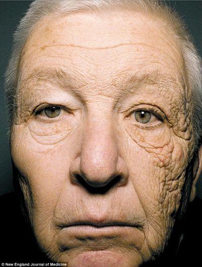Um lado do rosto envelhecido pelo sol